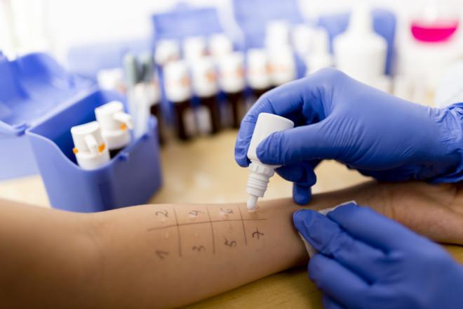 Как выявить аллерген – диагностика